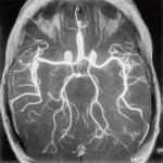 Энцефалопатия : симптомы, лечение.