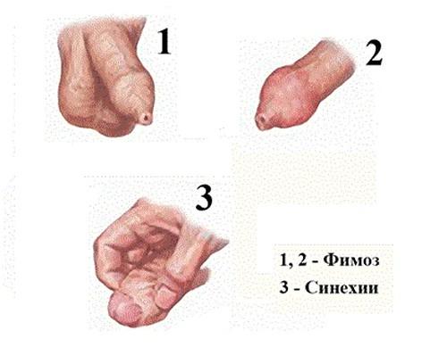 Chto_takoe_suzhenie_krayney_ploti_u_vzroslyh_lechenie_i_simptomy_1-1