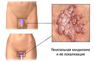 Кондиломы, симптомы, лечение
