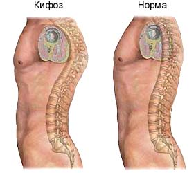 Кифоз