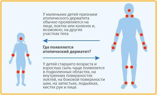 детский атопический дерматит