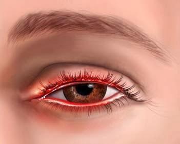 Аллергический дерматит век - причины, симптомы, лечение